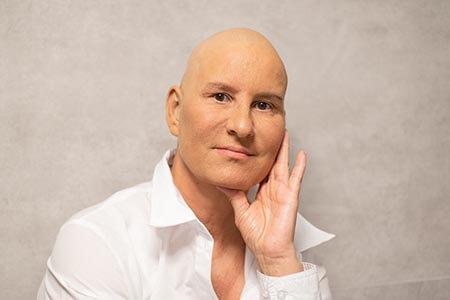 Cura para el cáncer ¿Qué sabemos?