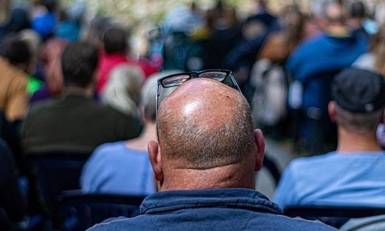 Trasplante capilar ¿Es un método eficaz para recuperar el cabello?